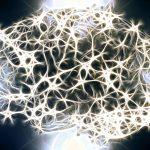 Brainstorm e SLA